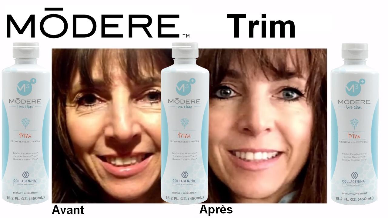 Modere Trim  Le produit miracle pour maigrir vite \u0026 rajeunir de 10 ans ?